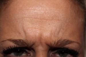 Frons patiënt voor de botox behanding, fronsrimpel