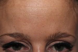 Frons patiënt zes dagen na de botox behandeling. Fronzen is niet meer mogelijk. Fronsrimpel
